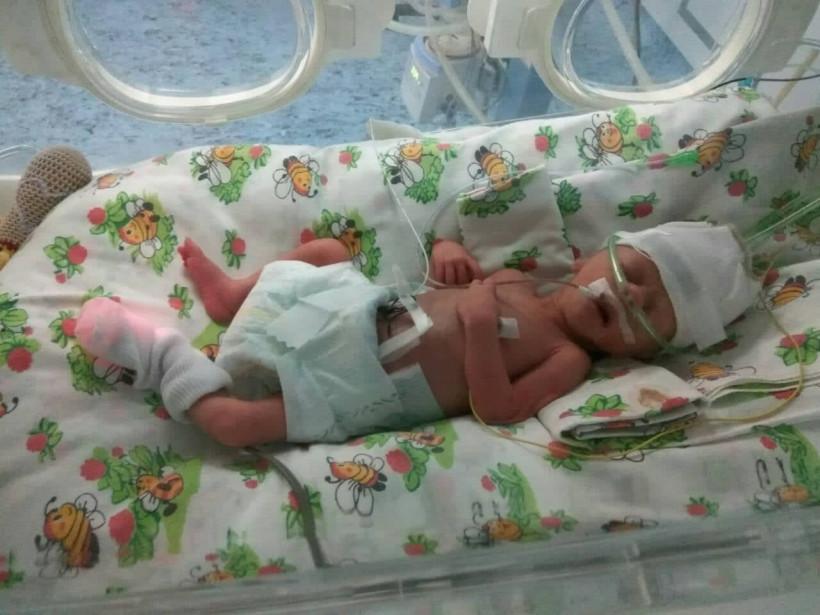 Дочь Аллы Рожко - недоношенный ребенок
