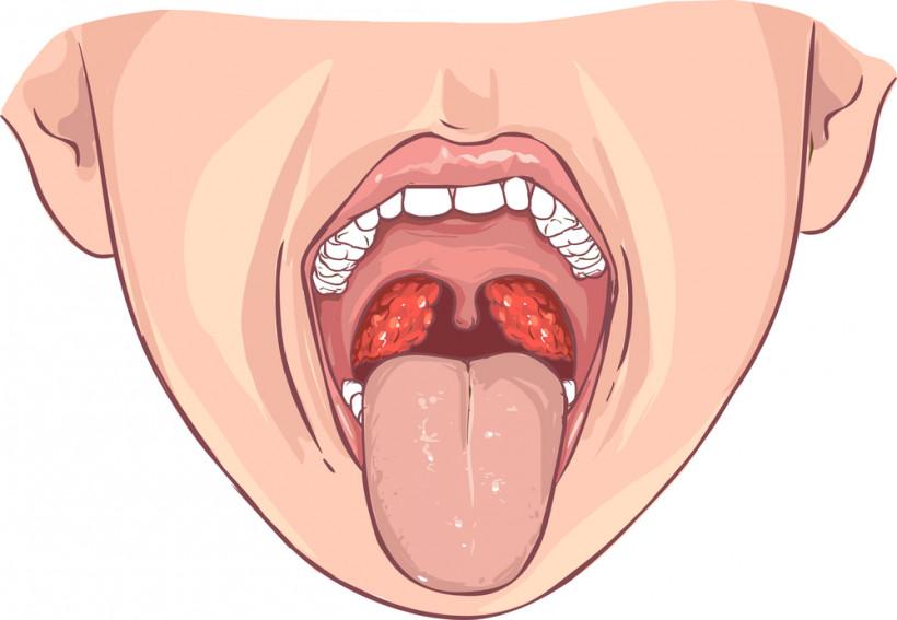 симптомы герпесной ангины у ребенка