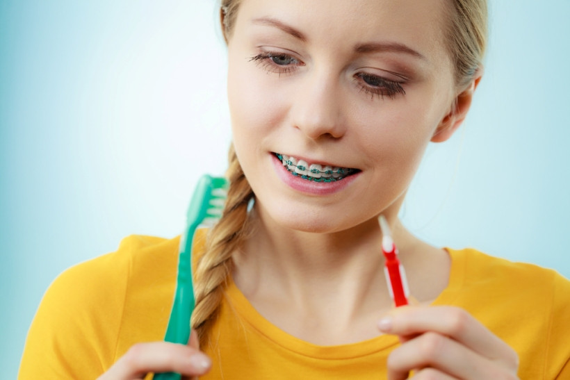 зуби з брекетами